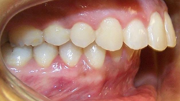 Răng hô là tình trạng xương hàm trên nhô ra phía trước hoặc xương ở hàm dưới lùi sau so với tiêu chuẩn thẩm mỹ