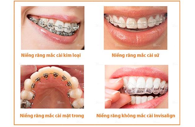 Các phương pháp nẹp răng hô phổ biến hiện nay