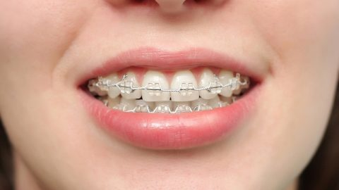 Nẹp răng hô và những điều cần biết