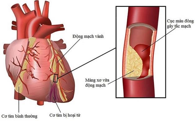 Các mảng xơ vữa và huyết khối là nguyên nhân chính gây bệnh tắc động mạch vành