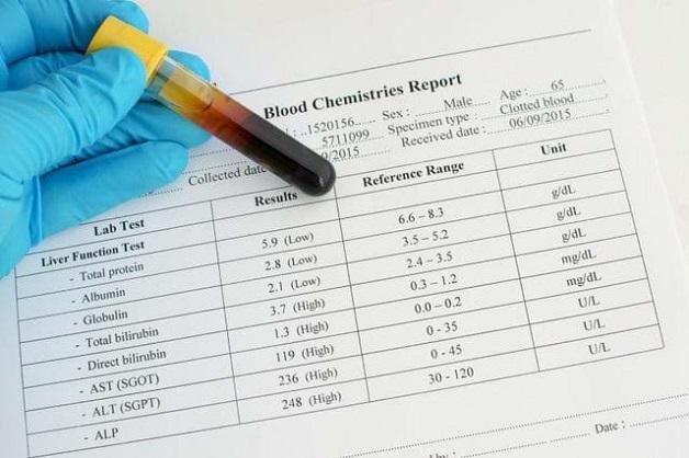 Dựa vào chỉ số men gan có thể chẩn đoán tình trạng bệnh