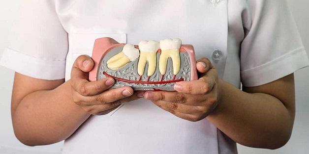 Răng khôn là chiếc răng hàm mọc cuối cùng và thường mọc lệch, xô vào răng bên cạnh gây ra cảm giác đau nhức, khó chịu.