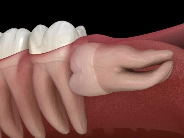Răng khôn mọc ngang là răng khôn mọc theo góc 90 độ, nằm ngang, vuông góc với răng số 7.