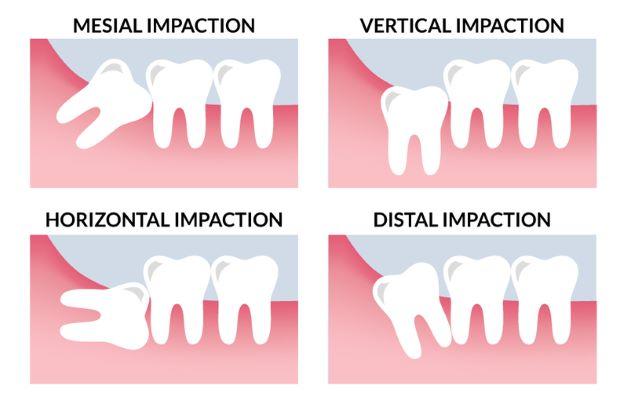 Bên cạnh kiểu mọc ngang thì răng số 8 còn mọc lệch theo rất nhiều kiểu khác nhau.