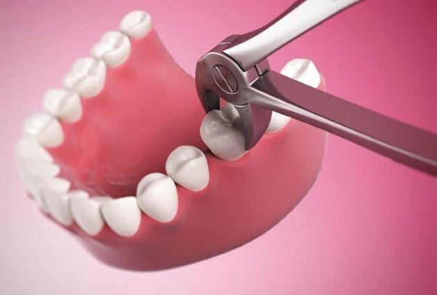 Nhổ răng bằng kìm là phương pháp nhổ răng truyền thống, phổ biến.