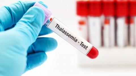 Những điều cần biết về xét nghiệm bệnh tan máu bẩm sinh