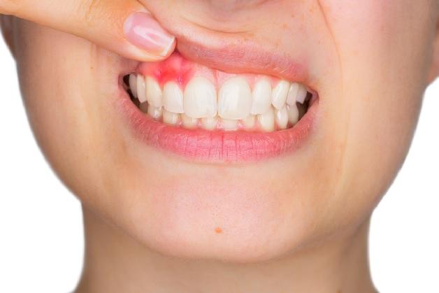 Nướu răng bị sưng là dấu hiệu nhiễm trùng chân răng
