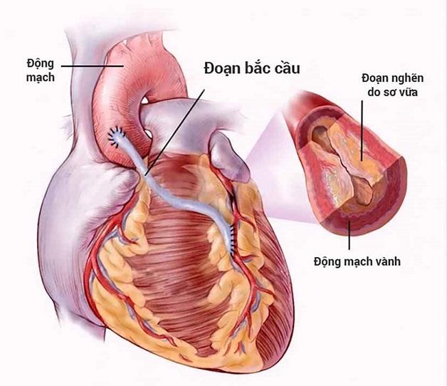 Bắc cầu động mạch vành chỉ được tiến hành trong những trường hợp cầu cơ gây hẹp động mạch vành rất nặng, điều trị bằng thuốc không đáp ứng