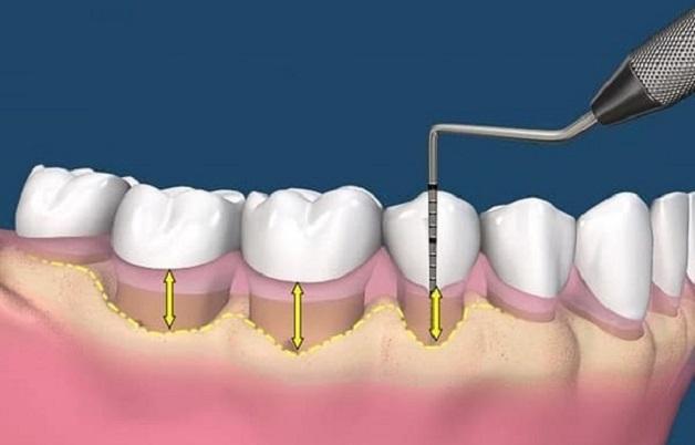 Ghép mô liên kết trong phẫu thuật ghép lợi là phương pháp hay được chỉ định cho điều trị nhiễm trùng chân răng.