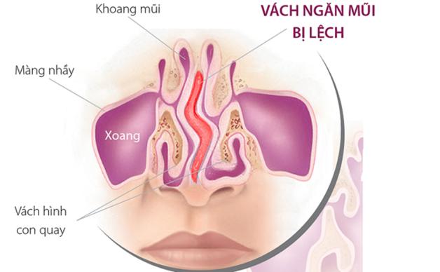 hình ảnh lệch vách ngăn mũi