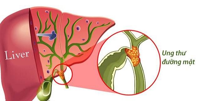 Polyp túi mật 10mm có thể gây ra ung thư