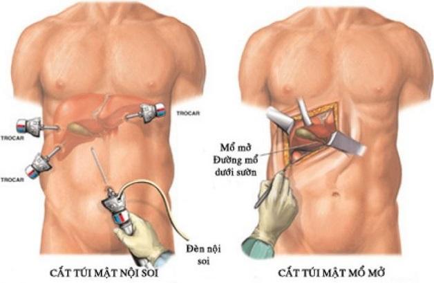 Bệnh nhân cần được phẫu thuật kịp thời để tránh các biến chứng nguy hiểm