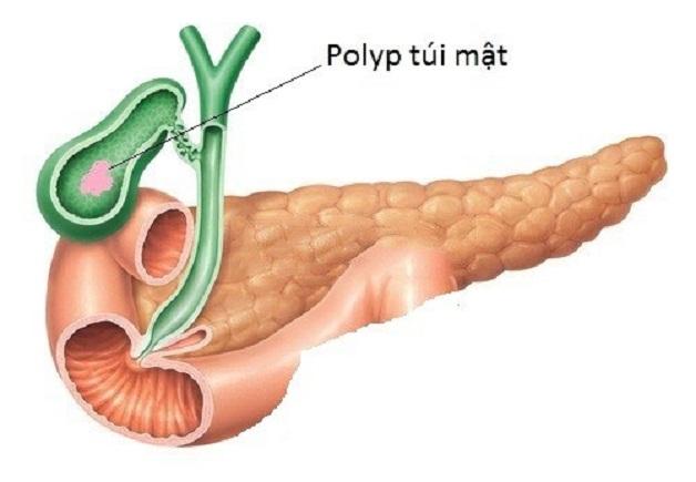 Polyp túi mật 8mm có thể dẫn đến nguy cơ ung thư túi mật
