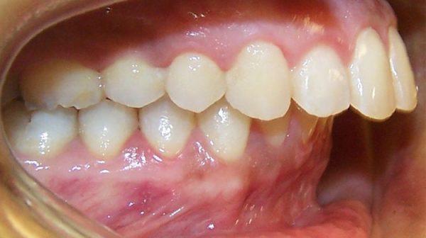 răng cửa bị hô là mtooj trong những trường hợp được bác sĩ chỉ định chụp răng sứ