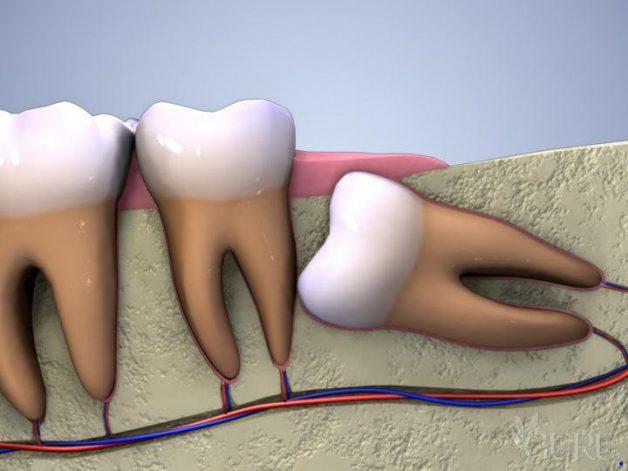 răng khôn mọc ngầm phải làm sao