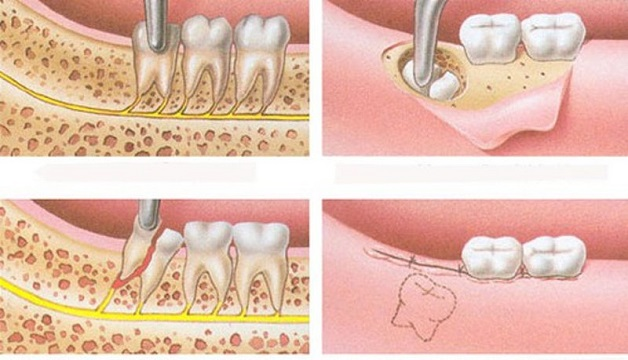 Quy trình nhổ răng khôn mọc ngầm