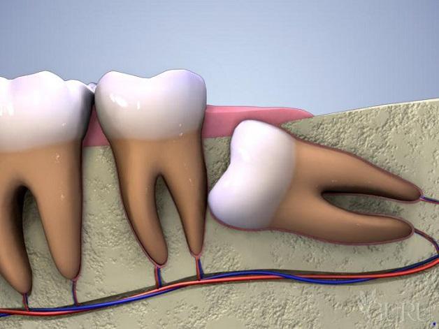 Răng khôn mọc ngầm trong xương làm ảnh hưởng đến sự phát triển bình thường của các răng nằm xung quanh nhất là răng số 7.