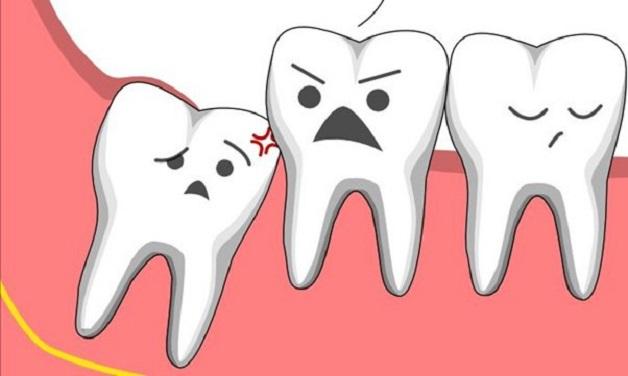 Răng khôn là những chiếc răng mọc sau cùng ở trên cùng hàm thường diễn ra vào độ tuổi trưởng thành.
