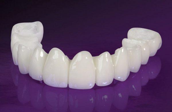 Răng sứ Cercon Đức là loại răng được khách háng sử dụng phổ biến