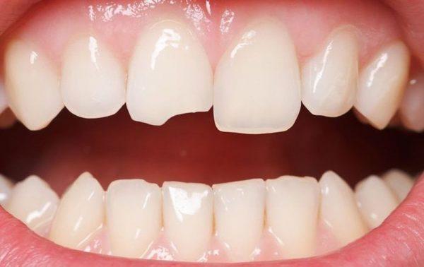 Răng bị sứt mẻ là một trong số những nguyên nhân gây nên tình trạng ngà răng nhạy cảm và bị ê buốt