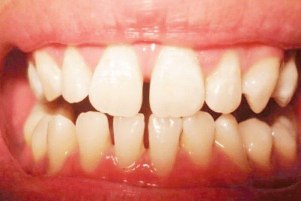 Răng thưa là tình trạng giữa các răng có khoảng cách, tạo nên cảm giác không chắc chắn và khiến thức ăn dễ giắt vào khe.