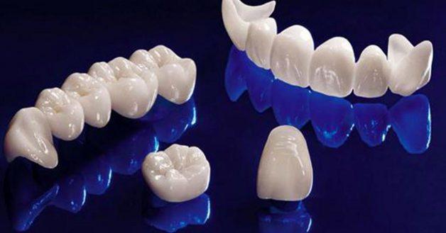 Răng toàn sứ có nhiều ưu điểm vượt trội và được sử dụng phổ biến hiện nay