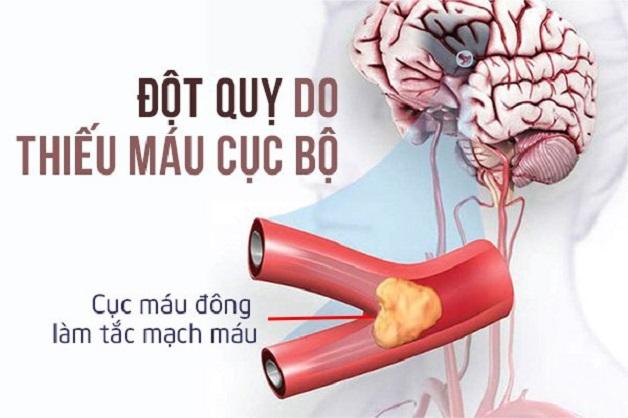 Rối loạn tiền đình thiếu máu não tăng nguy cơ gây đột quỵ não