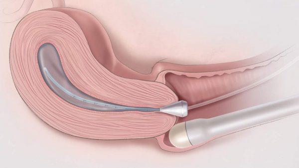Kiểm tra phụ khoa bằng đầu dò giúp bác sĩ có thể quan sát được những hình ảnh bên trong âm đạo