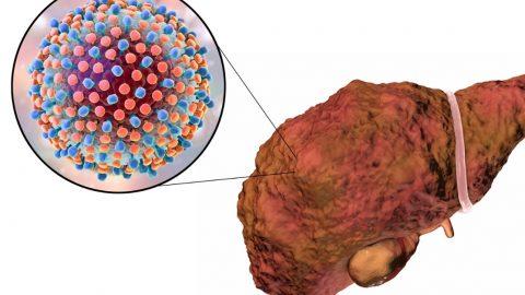 Siêu âm xơ gan và các kỹ thuật chẩn đoán mức độ xơ gan