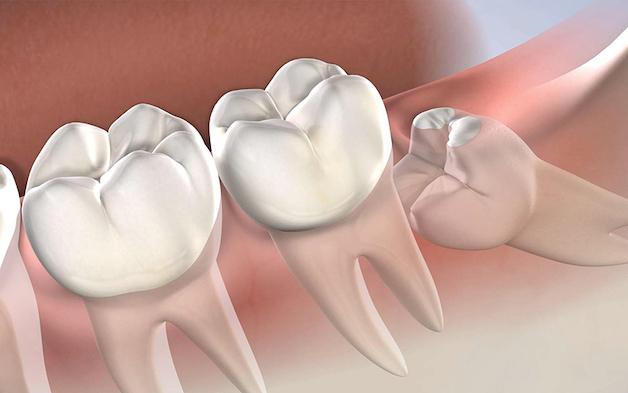 Mọc răng khôn là một trong những lsy do khiến nướu bị sưng và nổi hạch.