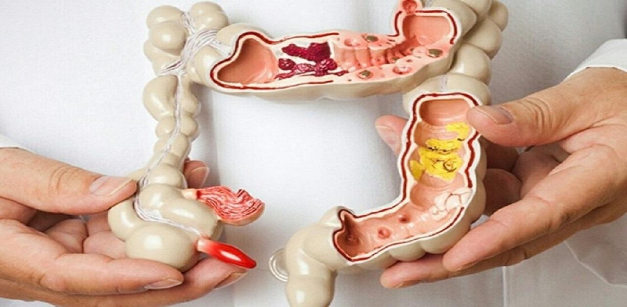 Tắc ruột già là gì? Nguyên nhân và cách chữa trị như thế nào?