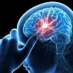 Thiếu máu não cục bộ là gì? Cơ chế hình thành