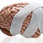 Thiếu máu não dấu hiệu nhận biết từ sớm như thế nào?