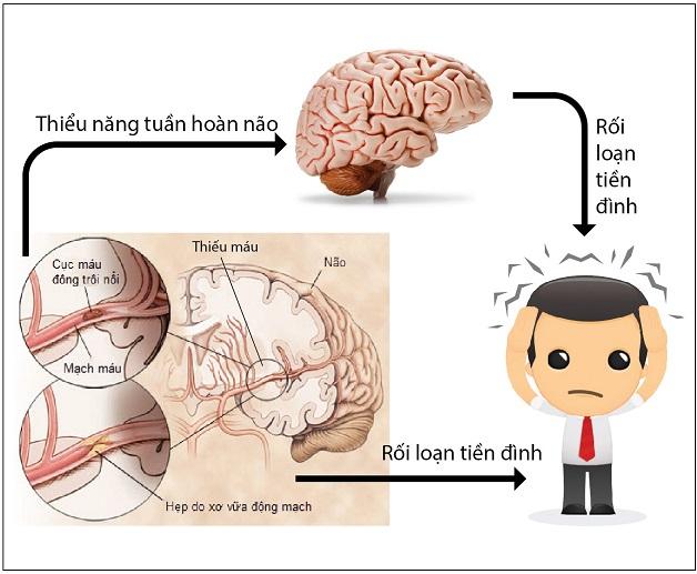 thiếu máu não rối loạn tiền đình