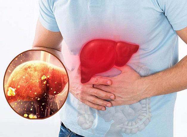 Men gan cao làm suy giảm chức năng gan