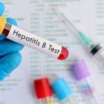 Tìm hiểu những xét nghiệm viêm gan b phổ biến hiện nay