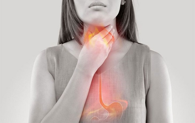 Tình trạng trào ngược dạ dày gây ho đờm kéo dài sẽ kéo theo nhiều biến chứng nguy hiểm