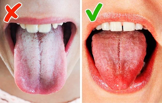 Trào ngược dạ dày lưỡi trắng là tính trạng xuất hiện lớp rêu trắng dày trên bề mặt lưỡi (nấm miệng)