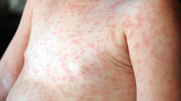 Nổi mẩn đỏ là một loại tổn thương trên da phổ biến và thường gặp ở trẻ nhỏ.