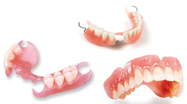 Hàm giả tháo lắp là các răng giả được đặt trên nền hàm có chất liệu bằng nhựa, có thể tự tháo ra hoặc lắp lại.