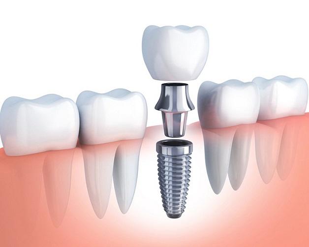 Cấy răng Implant là một phương pháp trồng răng giả cố định dùng trụ Implant thay thế cho chân răng thật