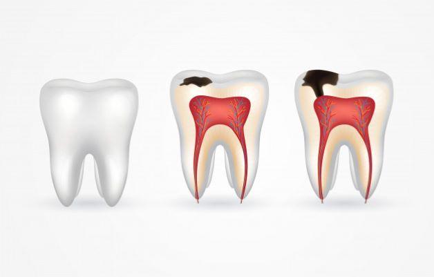 Bên cạnh việc mài cùi răng thật, sẽ có một số trường hợp muốn trồng răng giả thì cần phải lấy tủy răng để tránh lây lan sang các răng khác, ví dụ như sâu răng...