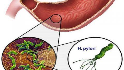 Vi khuẩn Hp là gì, có lây không và các phương pháp test Hp