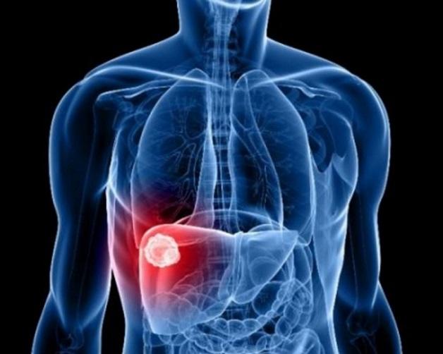 Viêm gan B mãn tính có nhiều triệu chứng điển hình