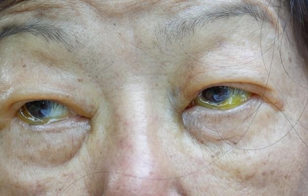 Mắt vàng là một trong những biểu hiện điển hình của viêm gan