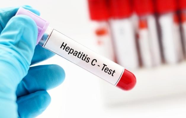 Thường xuyên tham khám y tế để sớm phát hiện bệnh viêm gan và điều trị kịp thời