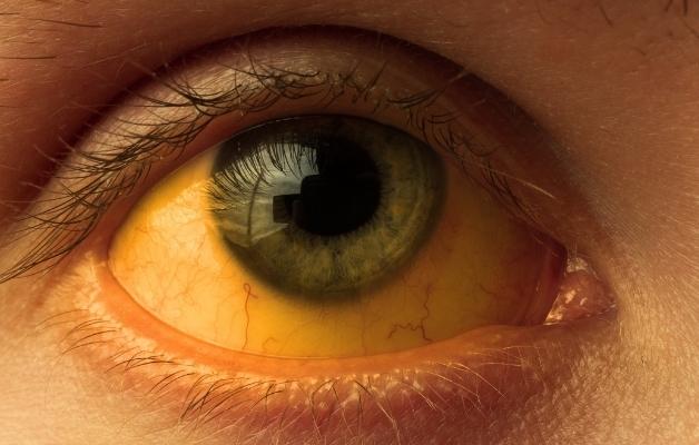 Vàng mắt - Dấu hiệu đặc trưng của viêm gan