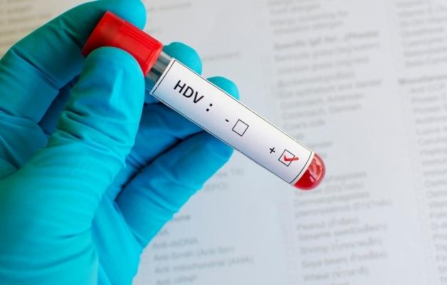 Viêm gan D là hiện tượng gan viêm nhiễm ảnh hưởng cấu trúc, chức năng