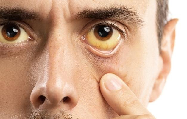 Vàng da và vàng kết mạc mắt