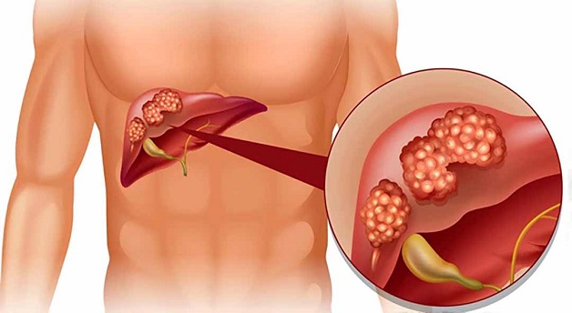 Viêm gan có thể biểu hiện ở nhiều dạng, nhiều giai đoạn bệnh khác nhau